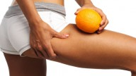 Cellulite, tutta colpa degli Ages!