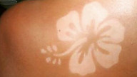 Sunburn art, il tatuaggio solare fa male!