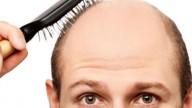 Calvizie, una pillola che fa ricrescere i capelli