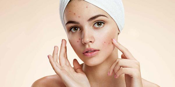acne_rughe