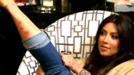 Kim Kardashian, la psoriasi sta sparendo